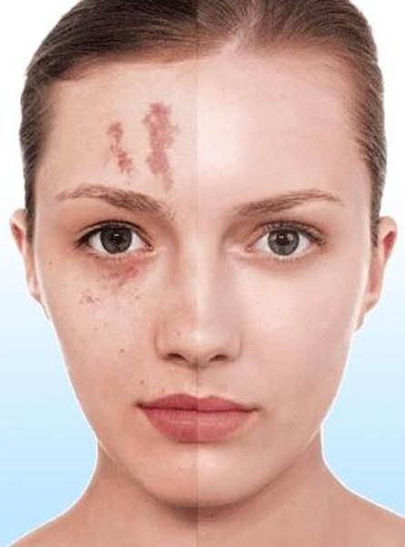 4 Makeup Tips To Hide Scars Beauty