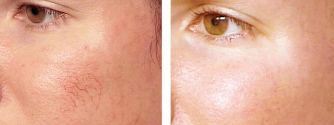 6 Makeup Steps To Hide Facial Spider Veins Beauty Ramp