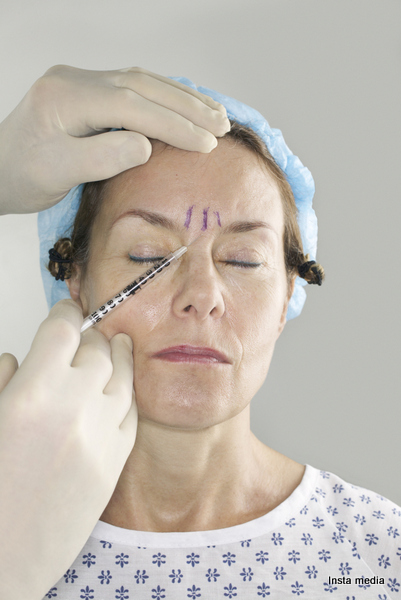 A plastic surgeon applies a botox injection to a woman's forehead